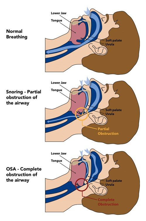 how an oral device treats snoring